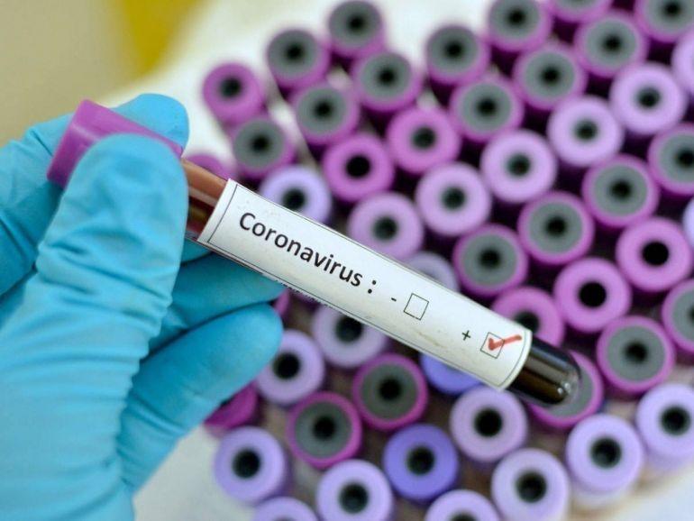 Мир в поисках вакцины: лекарства от коронавируса начали тестировать на людях
